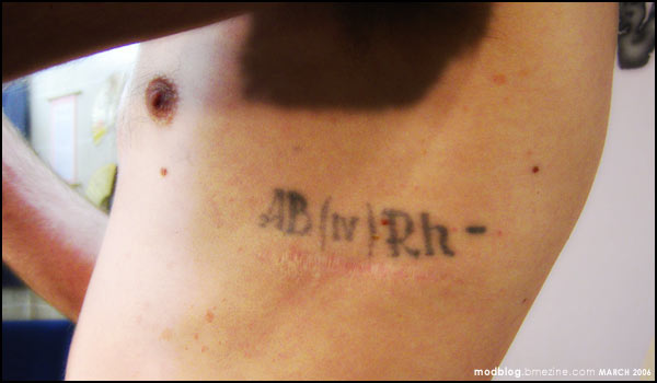 Tattoos around surgery scars bme tattoo piercing and for Are tattoos bad for your blood