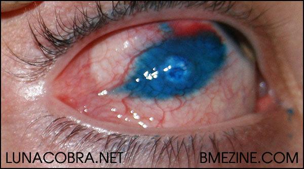 Josh s eyeball tattoo update bme tattoo piercing and for Eyeball tattoo pics