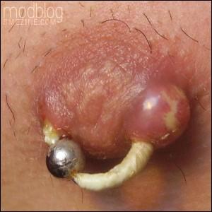 gross-nipple