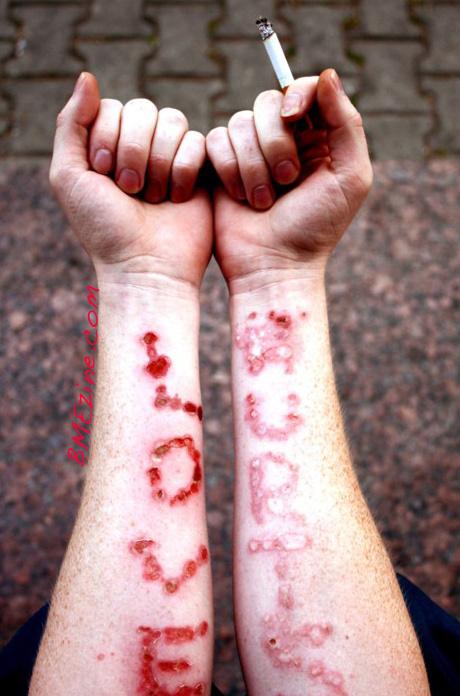 fzya-love-hurts-literally-copy