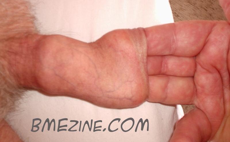 stretchfinger