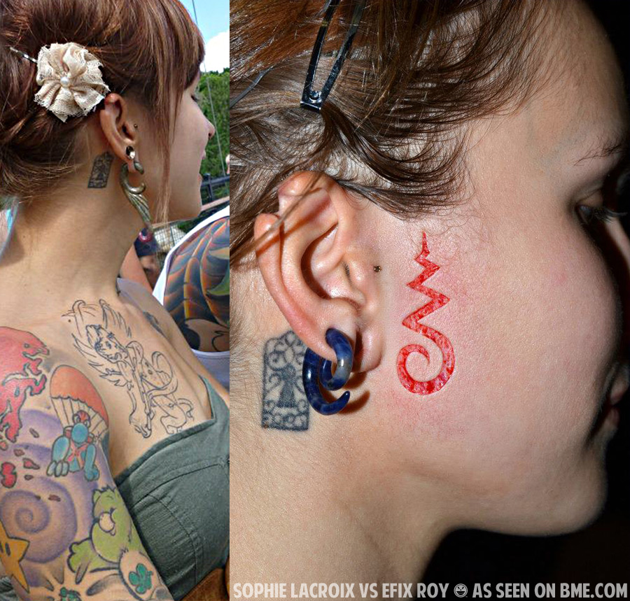 Scarification on Pinterest | Body Modifications, Piercing ... Ear Pointing Healed