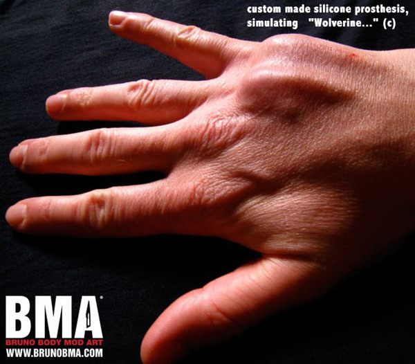 Hand Implant Bme Tattoo Piercing And Body Modification News
