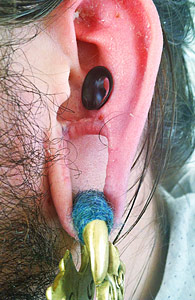 antitragus-removal-by-brian-decker-3t