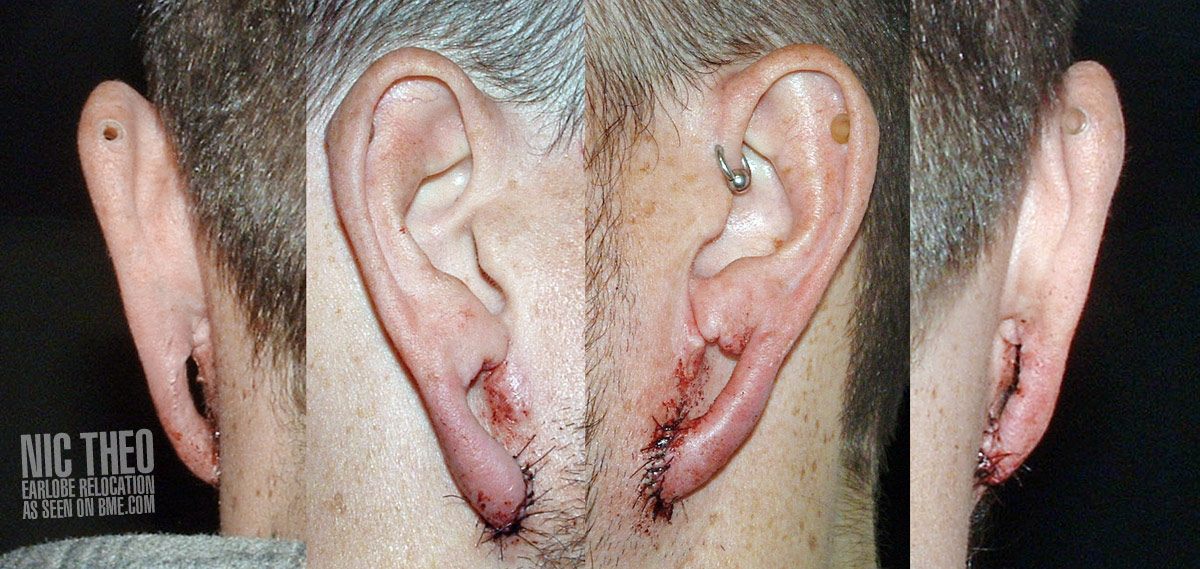 Alien Anatomy – Earlobe Relocation | BME: Tattoo, Piercing and Body ...