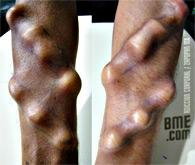 adiccion-corporal-forearm-ridges-3t
