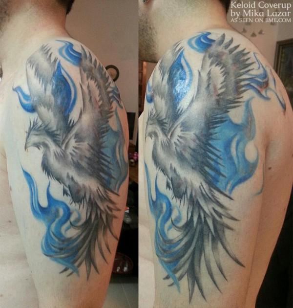 dan-keloid-phoenix-3
