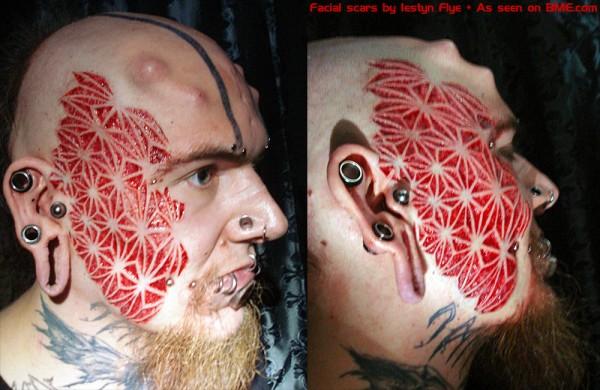 mega facial scar