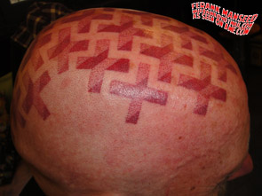 scalp-tattoo-3t
