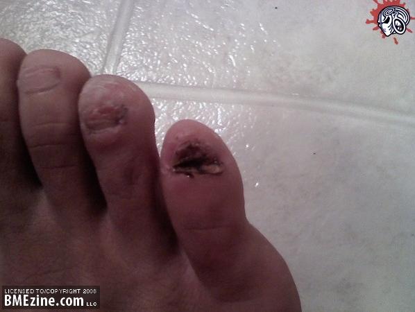 toenail2